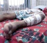 Sólo el 24 de diciembre ingresaron cinco menores victimas de la pólvora.