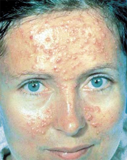 Las anguillas sobre la persona y el cuello el tratamiento