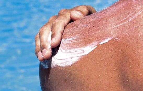 Se puede aplicar en la piel algunos remedios naturales para mermar los efectos de las quemaduras.