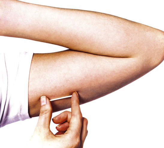 El anticonceptivo se introduce en el brazo,  pero incrementa  inevitablemente  el  factor  de  riesgo  que  en  sí  mismo representa para la salud y la integridad personal, especialmente de las mujeres.